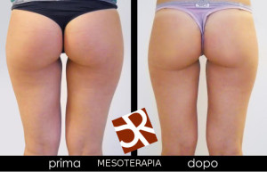 mesoterapia definitivo